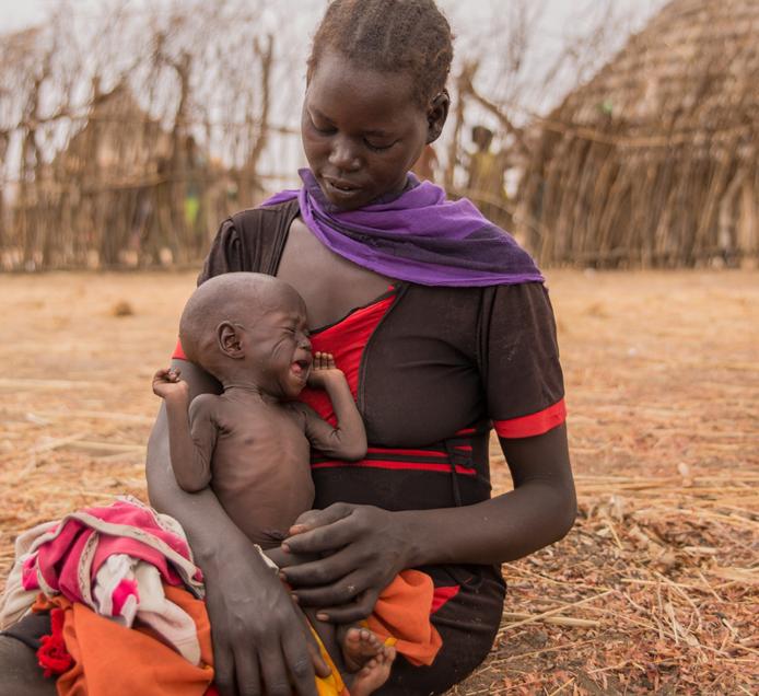 栄養失調の子どもを抱える南スーダンの母親