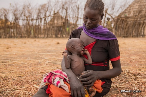深刻な栄養不良になってしまったアキールちゃんと母親