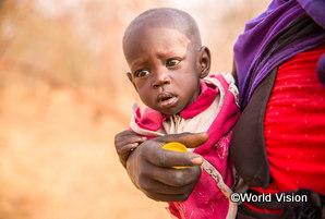南スーダンで暮らすアキールちゃん10.5秒に1人、栄養不良が原因で5歳未満の子どもが命を落としています
