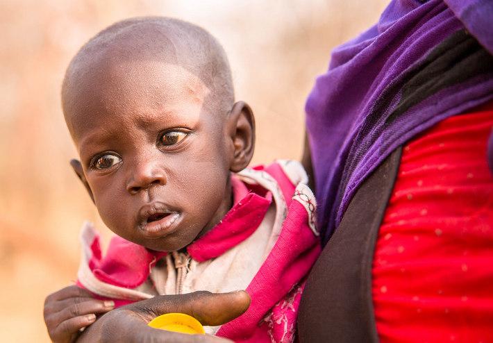 衛生的な水があれば、多くの子どもたちの命が救われます。しかし、世界では1日1,000人の5歳未満の子どもたちが水が原因で命を落としています。