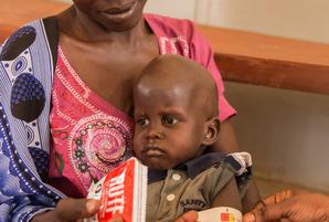 栄養不足で発達に遅れが出ている3歳のマイケル君。話すことも歩くこともできません