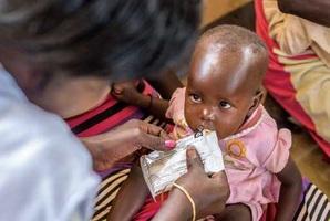 診療所で配布された栄養補助食を食べる赤ちゃん