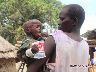栄養不良の子ども。栄養補助食で治療を受けています