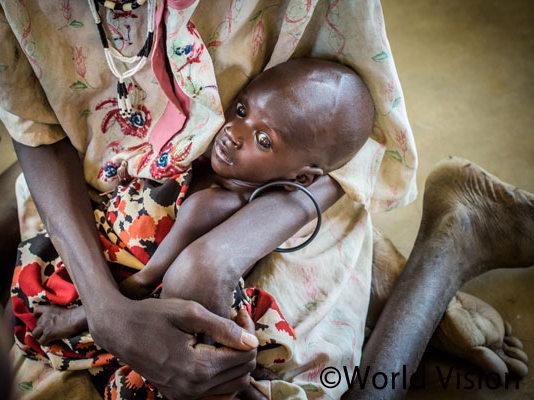 南スーダンの栄養不良の子ども