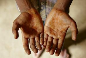 小さな手は、木ヤニのようなもので汚れています