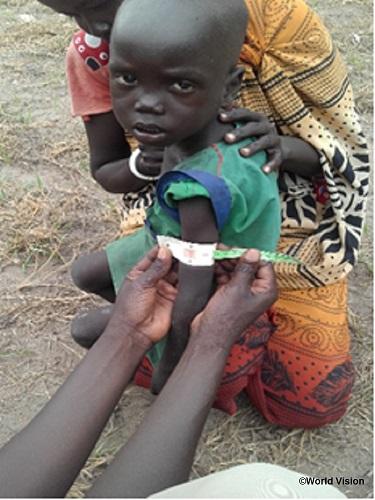 南スーダン飢饉対応】急性栄養不...