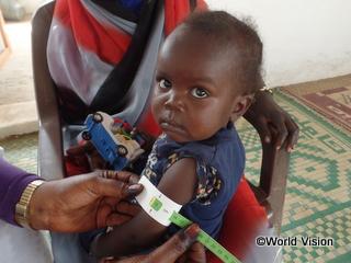栄養不良で治療を受けたスーダンのフダちゃん